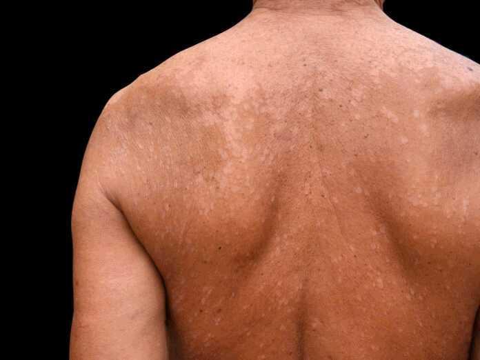 symptoms of tinea versicolor
