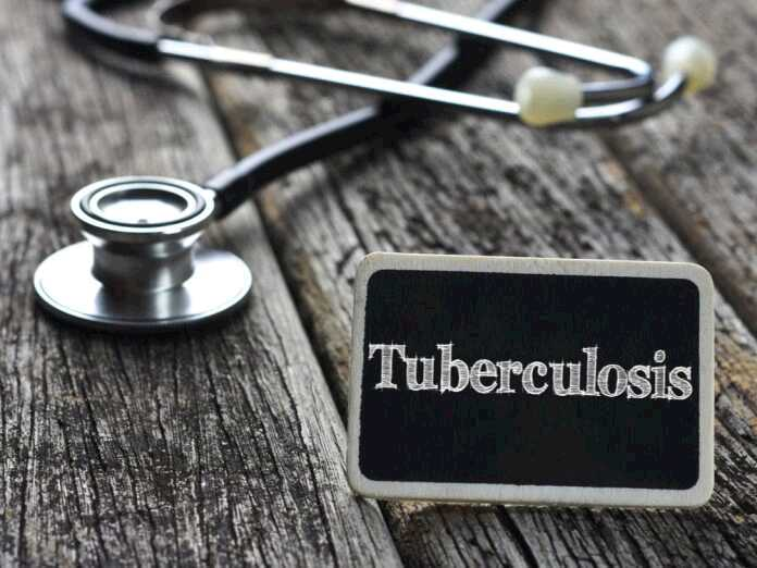 The Link between Pulmonary Tuberculosis and Fungal Infections