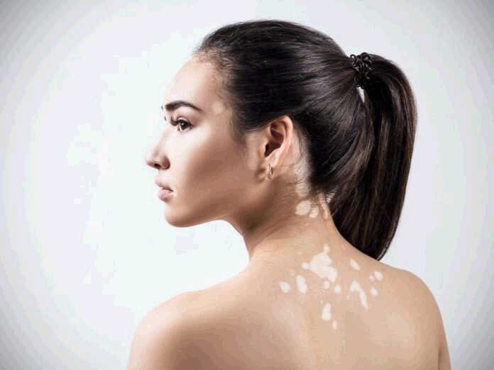 differences between vitiligo and fungus
