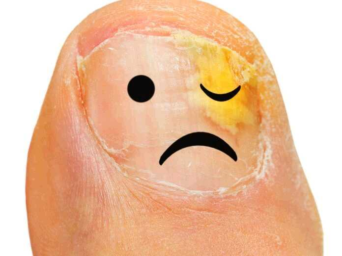 bleach to treat toenail fungus