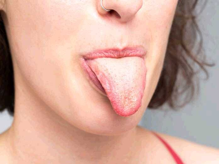 yeast infection facts