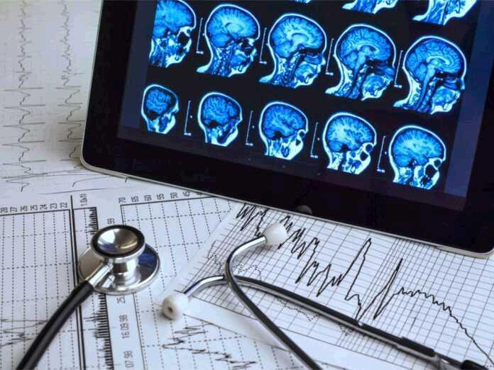 brain abscess symptoms