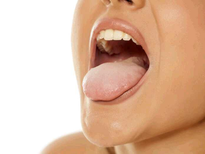what causes white tongue