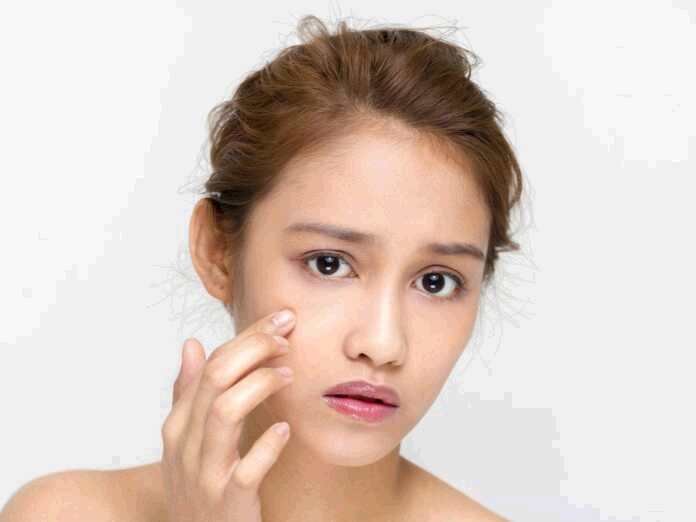 how popping zits could cause serious infections