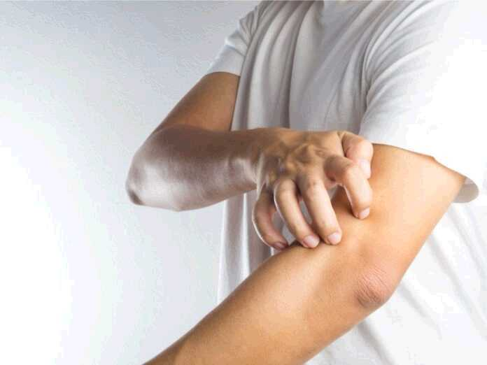 differences between shingles and ringworm