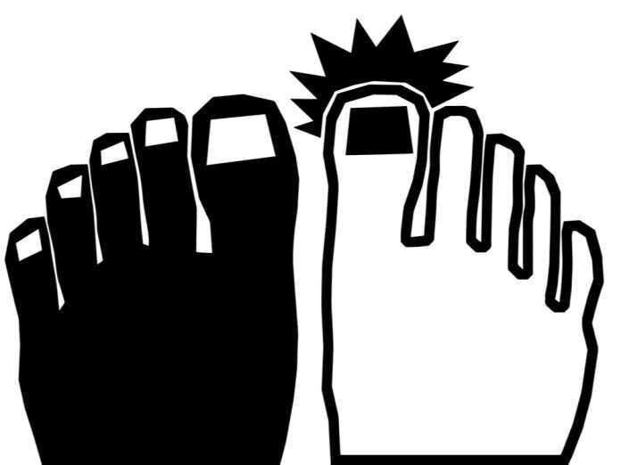 causes of black toenail