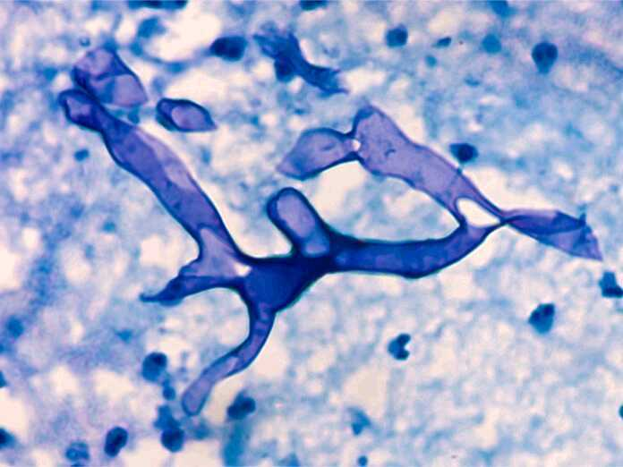 Flesh-eating fungal infection