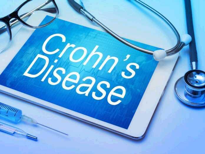 antifungal medication to treat Crohn's disease