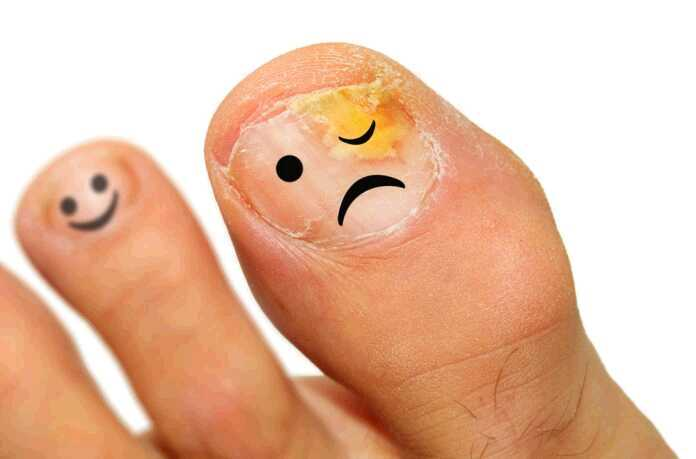 image of fungal nails